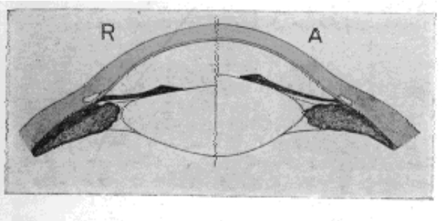 Fig. 10. Diagram by Which Helmholtz Illustrated His Theory of Accommodation