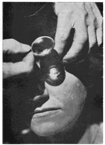 Fig. 48. Focussing the Rays of the Sun Upon the Eye of a Patient by Means of a Burning Glass