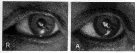 Fig. 26. Image of Electric Filament on the Front of the Lens