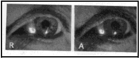 Fig. 29. Image of Electric Filament on the Front of the Sclera