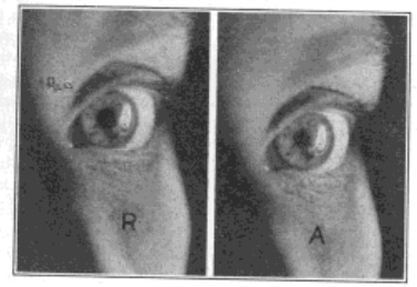 Fig. 28. Image of Electric Filament Upon the Cornea