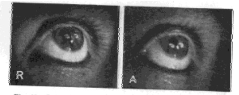 Fig. 27. Images of the Electric Filament Reflected Simultaneously From the Cornea and Lens