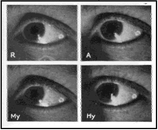 Fig. 30. Images on the Side of the Sclera