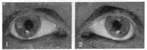 Fig. 32. Reflection of the Electric Filament From the Iris