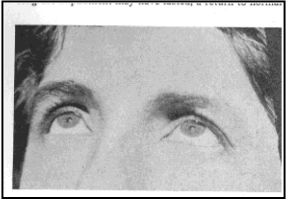 Fig. 46. Woman With Normal Vision Looking Directly at the Sun. Note That the Eyes are Wide Open and That There Is No Sign of Discomfort